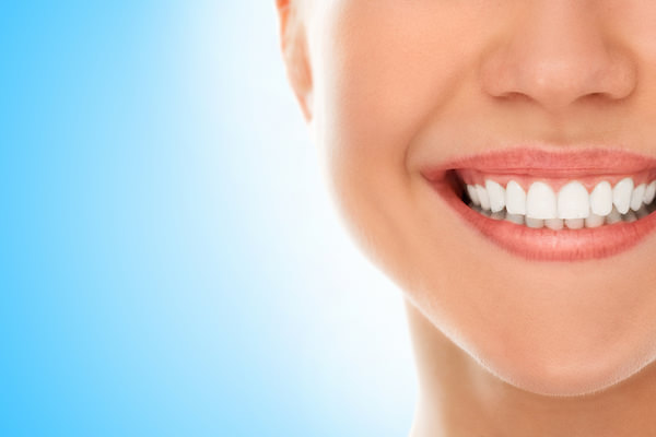 bonded dental fillings at Mid Cities Dental