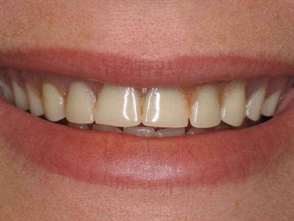 Dentures before